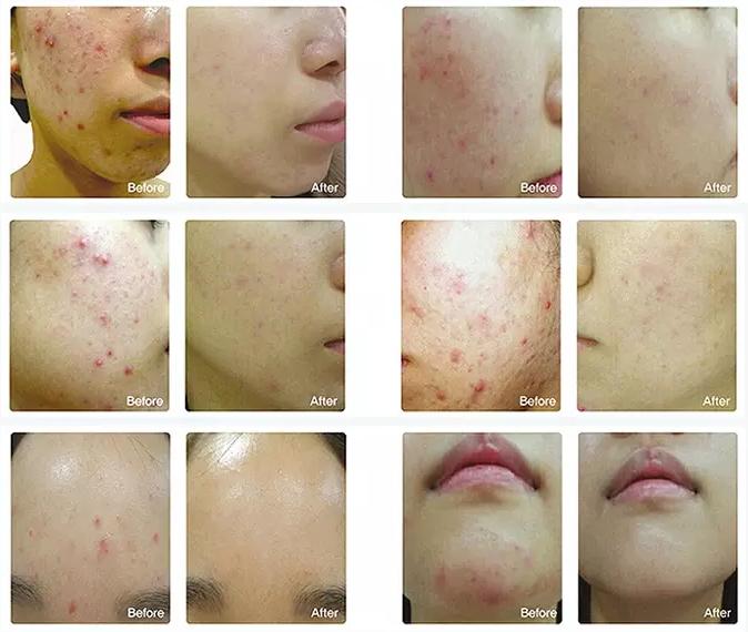 Lichttherapie masker voor huidverbetering bij de gezondheidsadviseur.nl